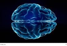 Xray Brain Image