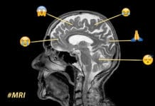Twitter MRI Image