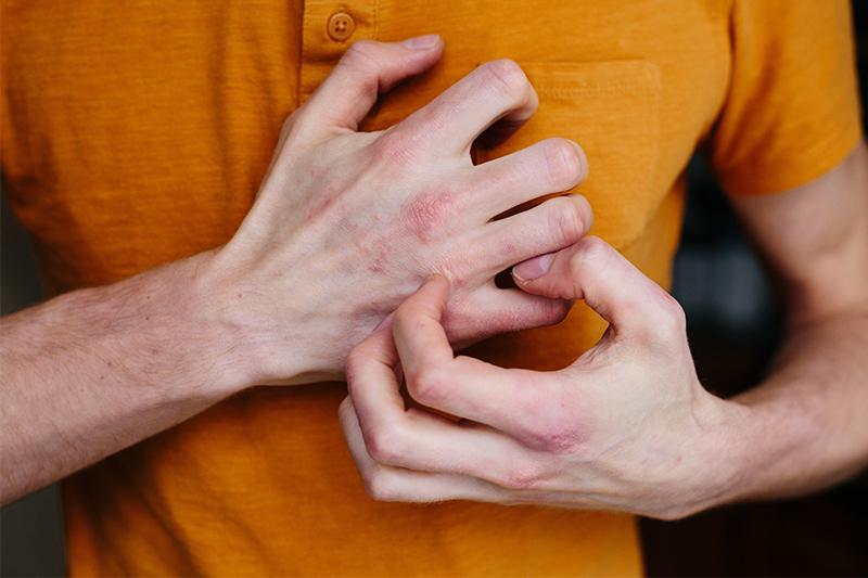Man in orange shirt grabbing his severely dry hand