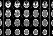"""Brain scan"""